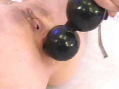 big balls in ass an prolapse